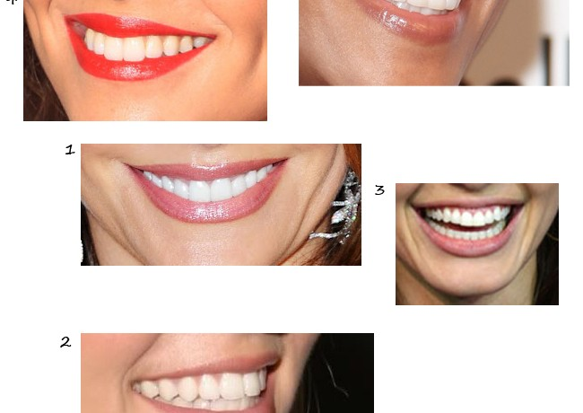 How to get the perfect celebrity smile?